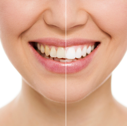 Teeth Whitening Torrance